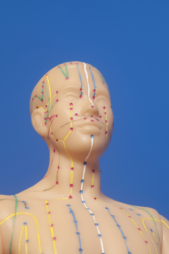 Medical acupuncture model